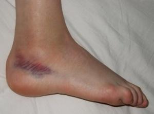 Лечение гематомы на ноге после ушиба народными способами