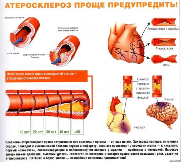 Болезни вен и сосудов на ногах: перечень, симптомы и лечение