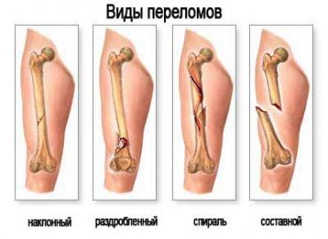 Как долго срастаются кости после перелома?