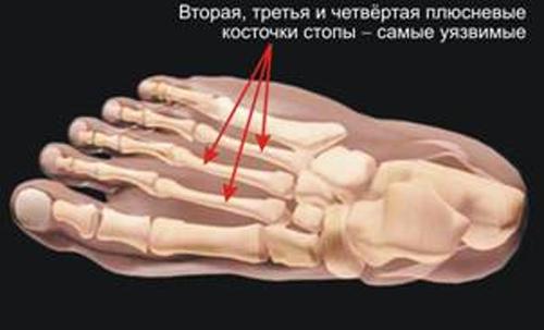 Лечение переломов плюсневых костей стопы со смещением и без