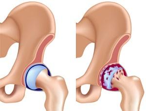 lechenie-koksartroza-tazobedrennogo-sustava