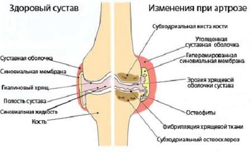 Артроз - лечение народными средствами