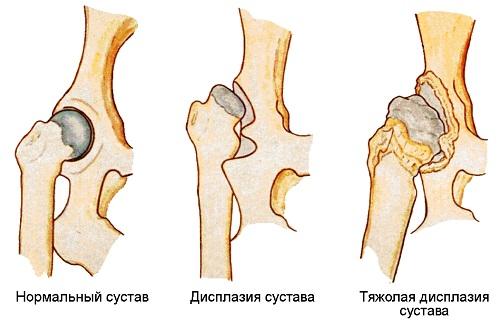 Лечебная гимнастика при дисплазии тазобедренного сустава у взрослых где сделать мрт коленного сустава в воронеже