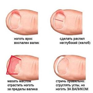 Вросший ноготь на ноге, симптомы, лечение, профилактика 50