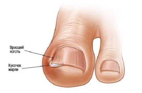 Как избавиться от вросшего ногтя: операция и лазерная корекция