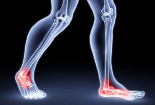 Болит сустав стопы при ходьбе восходящая повязка на коленный сустав