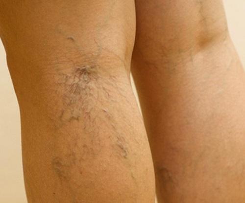 Что делать, если болят вены на ногах?