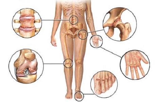 Как лечить полиартрит ног — Суставы