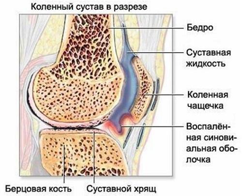 Почему колено опухло и болит? Ищем возможные причины!