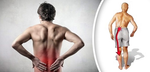 Боль в пояснице отдает в ногу - ищем причины болевого синдрома