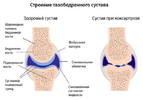 Лечение при коксартрозе коленного сустава код по мкб 10 медикаменты лфк диета народные средства