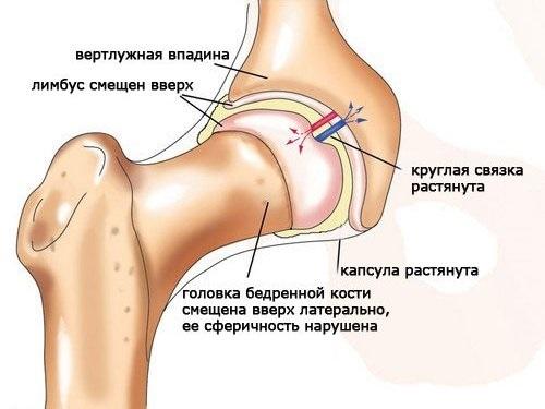 Код по МКБ-10: артроз коленного сустава
