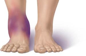 Отеки ног при травмах и болезнях