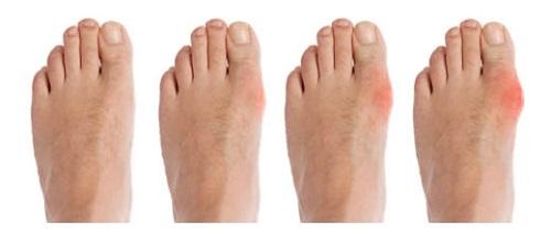 подагрический артрит стопы симптомы и лечение