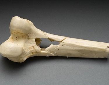 Фиброзная дисплазия кости