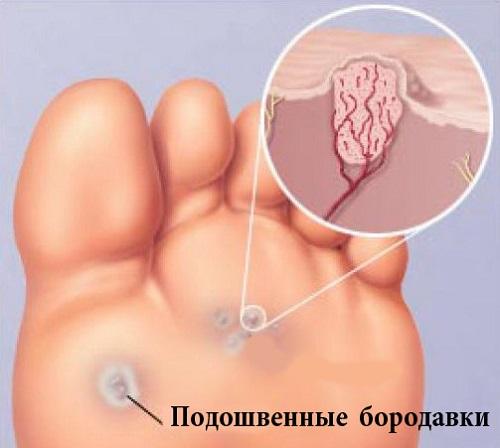Как лечить бородавки на стопе и на ногах?