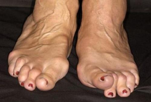 Артрит ног симптомы и лечение