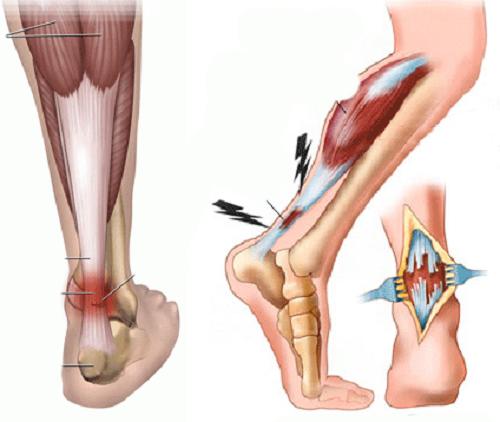 Как вправить сустав ноги лечение суставов сосновой смолой