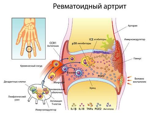 Ревматоидный артрит: причины, симптомы и методы лечения