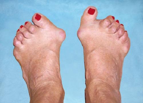 Артрит нижних конечностей симптомы и лечение