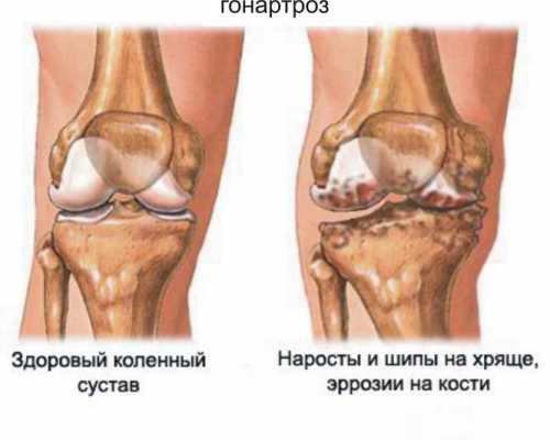 artroz-ks