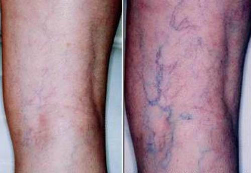 Почему появляются синие вены на ногах и как их лечить?