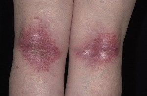Виды дерматитов, их проявления и лечение