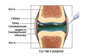protez3