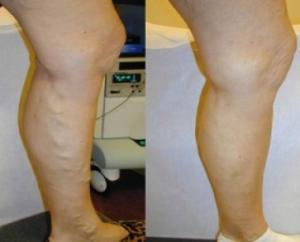 До и после проведения процедуры