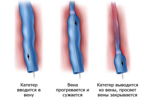 ablacia