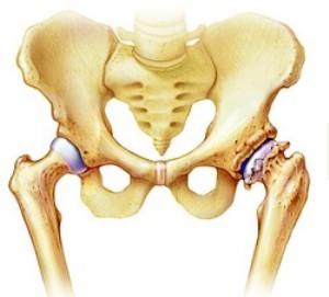 deform-osteoar