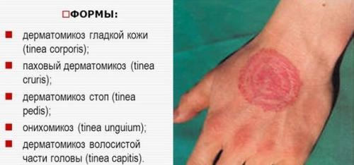 dermatomik3