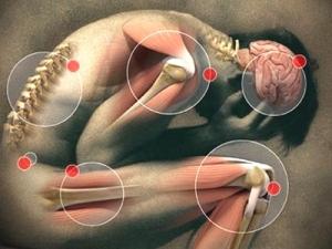 fibromialgija2