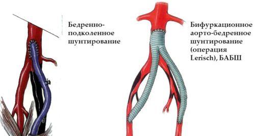 Шунтирование сосудов нижних конечностей - зачем его применяют?