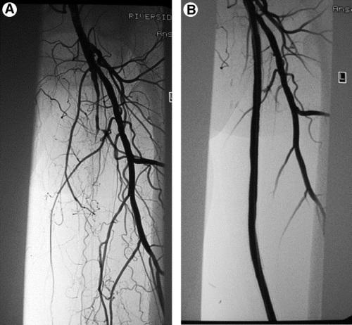 angiograf2