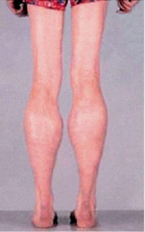 Атрофия мышц бедра