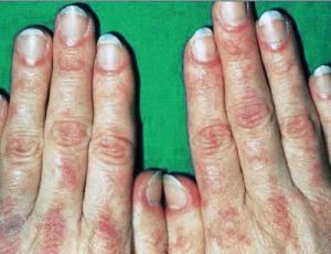dermatomioz
