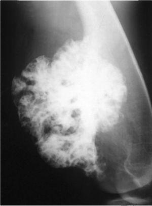 osteohondroma2