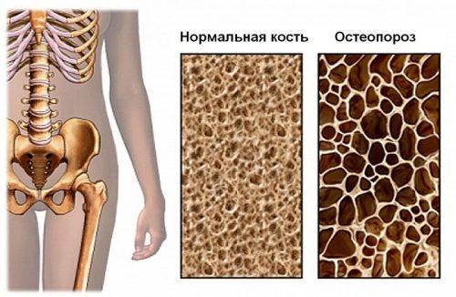 osteop-sb2