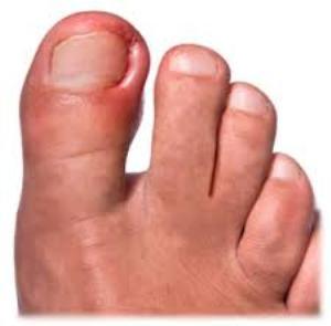 Причины развития и проявления вросшего ногтя на ноге