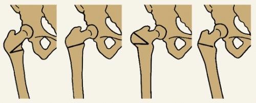 osteotomia2