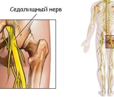 Причины развития и следствия развития воспаления седалищного нерва