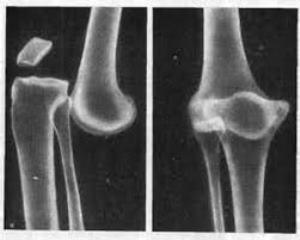 Причины, диагностика и лечение вывиха костей голени