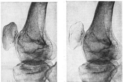 Рентгенограмма колена, слева - до развития заболевания, справа - остеопороз надколенника