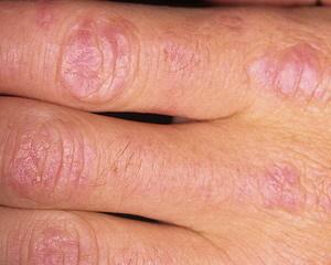 Виды, проявления и терапия полимиозита