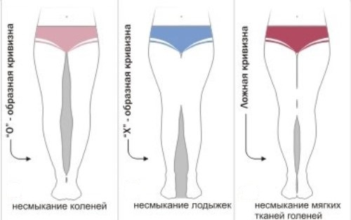 kriv-nogi