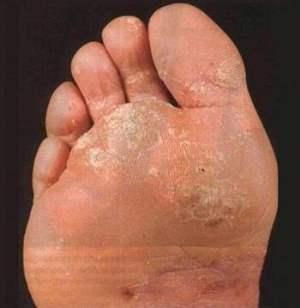 Как избавиться от омозолелости стопы?