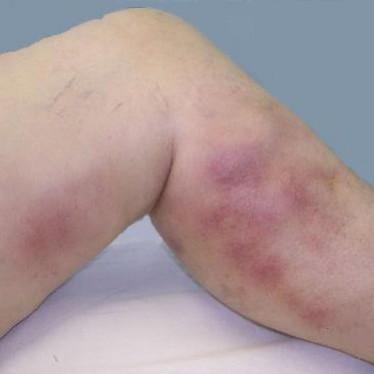 Симптомы и лечение тромбоэмболии ног
