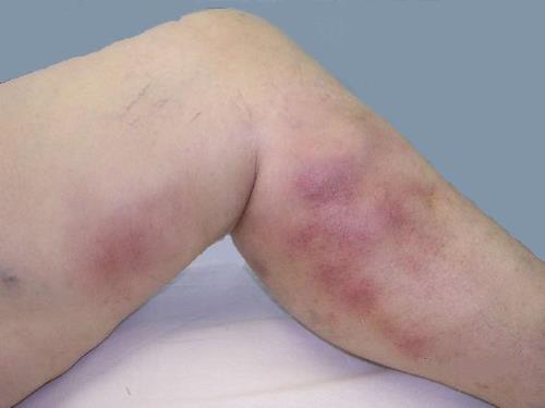 Тромбоэмболия нижних конечностей - что это такое, симптомы и лечение