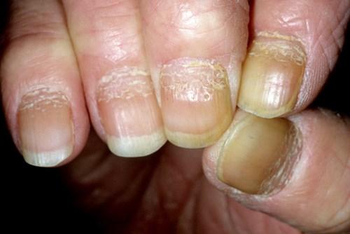Псориаз ногтей или псориатическая ониходистрофия - симптомы ...